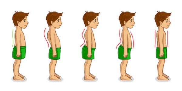 La postura scorretta nei bambini