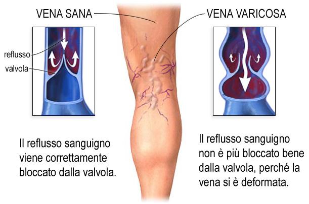 Vene varicose: sintomi e rimedi