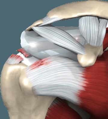 """Chirurgia della spalla. Gli esperti europei: """"Tra il 7 e il 15% torna sotto i ferri"""""""