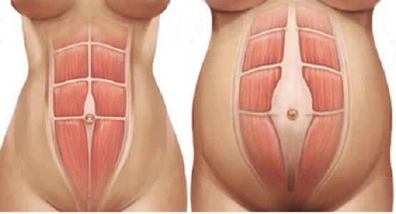 Diastasi addominale post parto: cos'è?
