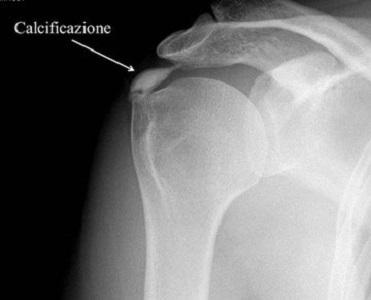 Spalla, onde d'urto e fisioterapia per la tendinopatia calcifica