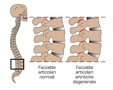 Sindrome delle faccette articolari lombari