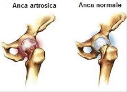 Artrosi dell'anca: fisioterapia o chirurgia?