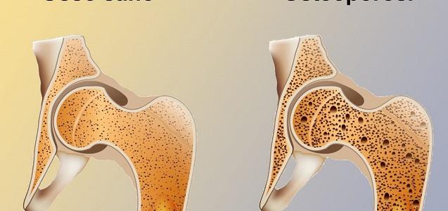 I 15 esercizi che vi aiutano a fronteggiare l'osteoporosi