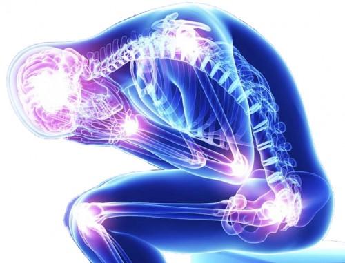 Forti dolori muscolari, anni per la diagnosi: le sofferenze dei malati di fibromialgia