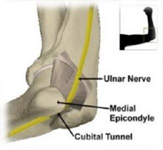 Sindrome da compressione del nervo ulnare al gomito