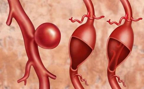 L'antibiotico provoca l'aneurisma all'aorta