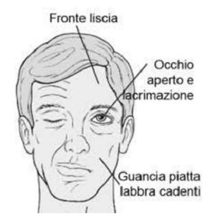 Occhiali contro paralisi facciale