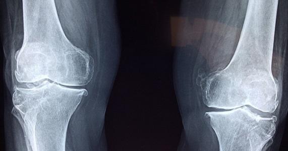 Mai ignorare i dolori alle ginocchia, a qualsiasi età
