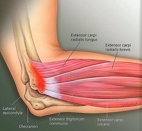 Hai il gomito del tennista? Ecco come riconoscere i sintomi!
